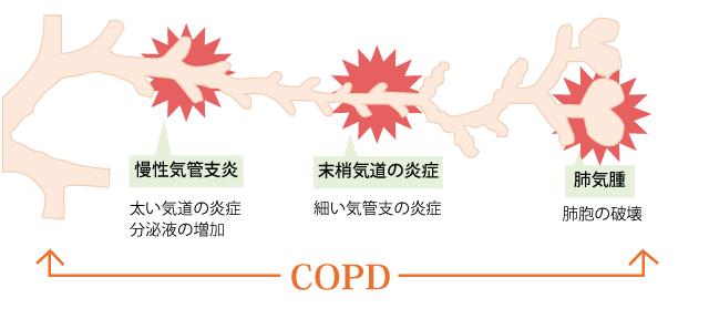 炎 と は 慢性 気管支